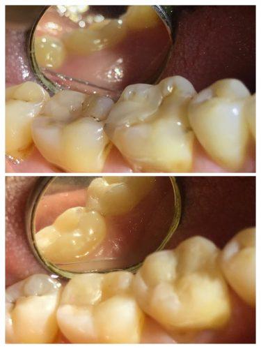 ¿El tratamiento dental más barato?